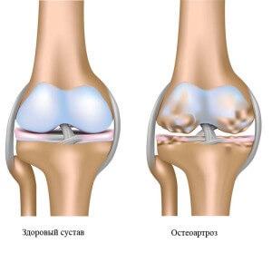 Картинки по запросу Что такое остеоартроз и, как с ним бороться?
