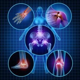 Что собой представляет артрит? Причины, симптомы, лечение.